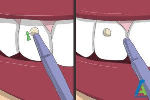 5 چسباندن نگین روی دندان