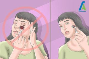 5 نحوه استفاده از میکرونیدلینگ