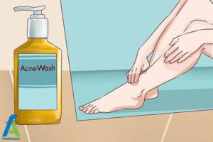 4 درمان جوش های پوست پا
