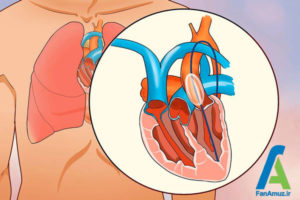 5 تپشهای نا منظم قلب