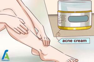 5 درمان جوش های پوست پا