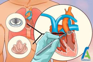 6 تپشهای نا منظم قلب