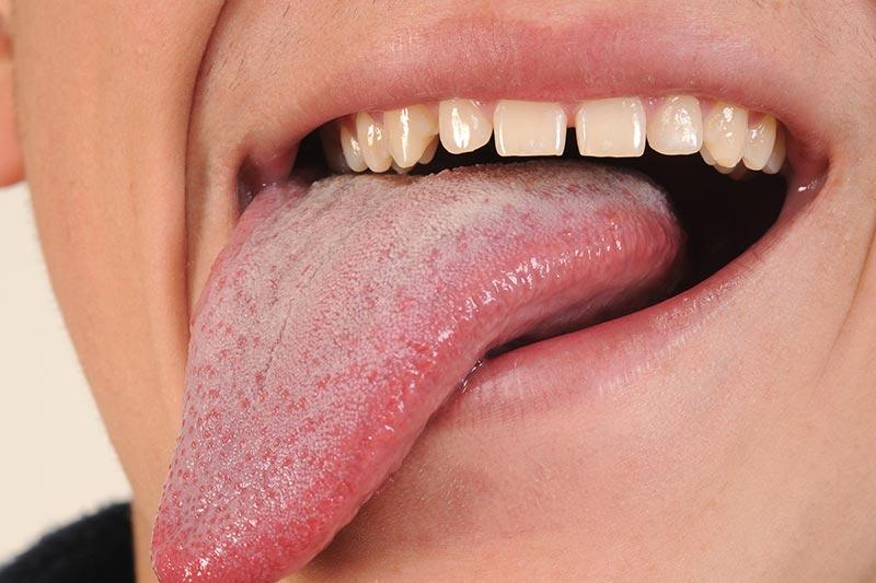 5 نحوه افزایش طول زبان
