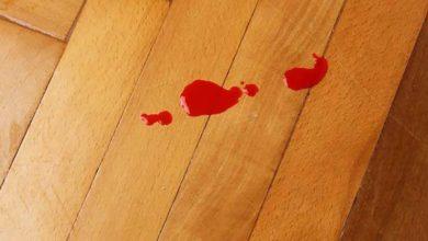 Photo of چگونه لکه های خون را از سطوح چوبی مختلف پاک کنیم؟