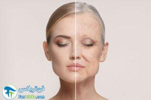 1 جوانسازی پوست صورت با سلول های چربی
