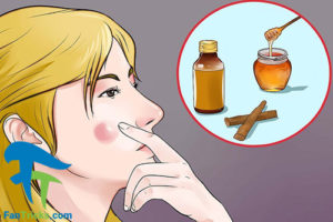 2 روش خانگی برای تسریع درمان جوش
