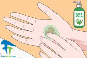 3 درمان سوختگی ناشی از سرکه سیب