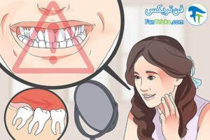 3 علائم رشد دندان عقل