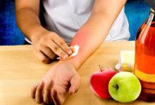 Photo of چگونه سوختگی های ناشی از سرکه سیب را درمان کنیم؟