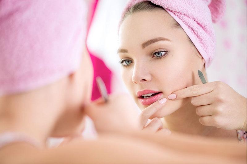 5 روش خانگی برای تسریع درمان جوش