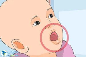 2 پیشگیری از دهیدراته شدن بدن نوزاد