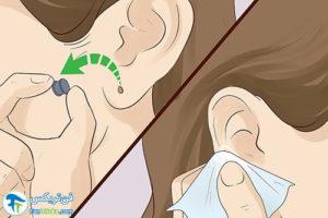 3 طرز بستن سوراخ لاله گوش