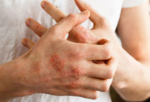 Photo of روش های درمان طبیعی طب آیورودا برای بیماری پوستی پسوریازیس