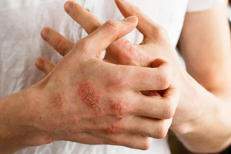 4 روش درمان پسوریازیس با طب آیورودا