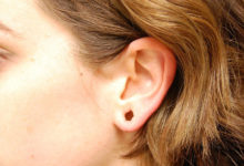 Photo of نحوه بستن و کوچک کردن سوراخ لاله گوش