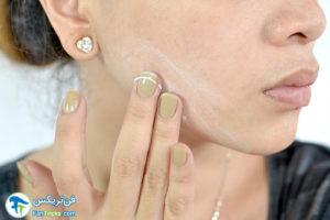 5 ساخت تونر آسپرین برای پوست صورت
