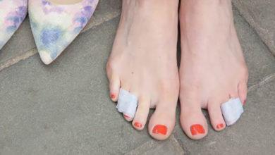 Photo of چگونه انگشت آسیب دیده پا را پانسمان و آتل بندی کنیم؟