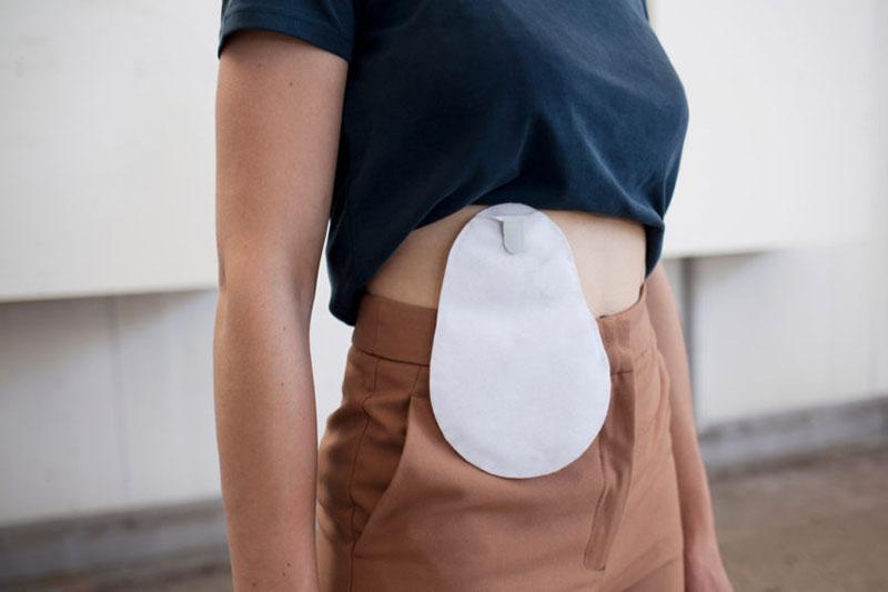 8 اصول پوشیدن لباس جهت پنهان کردن استومی