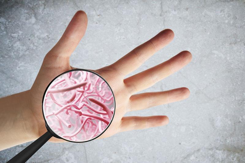 3 میکروبیوم پوست چیست