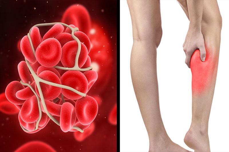 4 جلوگیری از لخته شدن خون