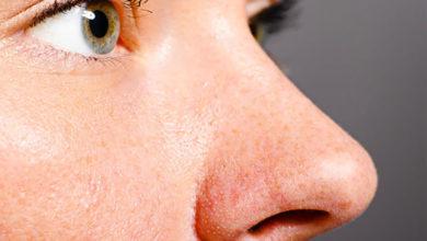 Photo of چگونه با روش های طبیعی منافذ باز بینی را ببندیم؟