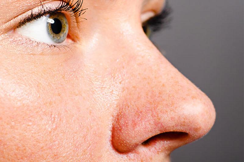 6 از بین بردن منافذ باز بینی