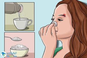 1 جلوگیری از عفونت پیرسینگ ابرو