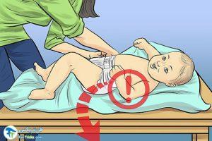 1 مراقبت از کودک هنگام چهار دست و پا رفتن