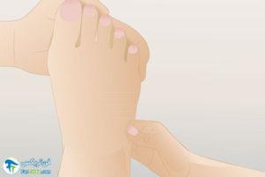 1 درمان فیبرومیالژیا با رفلکسولوژی پا