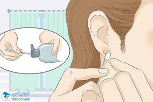 1 درمان حساسیت بدن به پیرسینگ