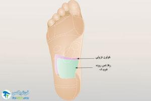 11 درمان فیبرومیالژیا با ماساژپا