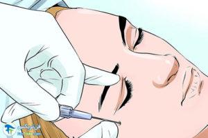 2 پیشگیری و درمان عفونت بعد از بوتاکس
