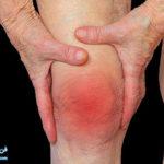 2 تاثیرگل همیشه بهار بر درمان آرتریت