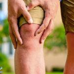 2 درمان طبیعی آرتریت با بروملین آناناس