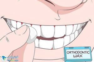 3 از بین بردن تیزی دندان شکسته