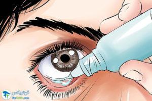 3 مراقبت و تسکین درد خراش قرنیه چشم