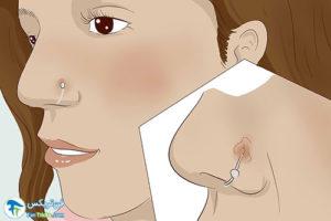 3 درمان حساسیت بدن به پیرسینگ