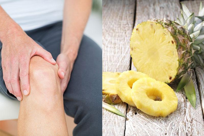 3 درمان طبیعی آرتریت با بروملین آناناس