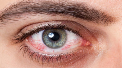 Photo of اصول مراقبت و تسکین درد خراش قرنیه چشم در خانه