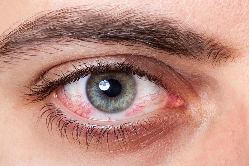 4 مراقبت و تسکین درد خراش قرنیه چشم