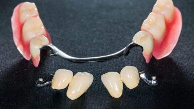 Photo of نحوه صحیح و اصولی استفاده از دندان مصنوعی تکه ای