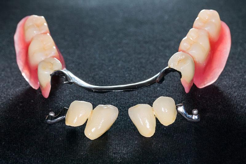 5 اصول استفاده از دندان مصنوعی تکه ای