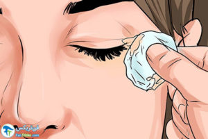 5 پیشگیری و درمان عفونت بعد از بوتاکس