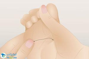 6 درمان فیبرومیالژیا با رفلکسولوژی پا