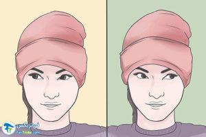 2 جلوگیری از ابتلا به دژنراسیون ماکولا