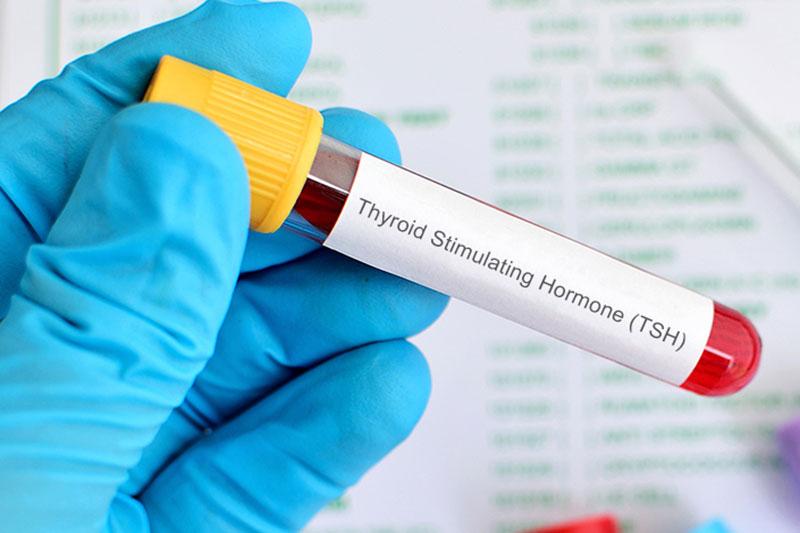4 افزایش سطح هورمون تحریک کننده تیروئید