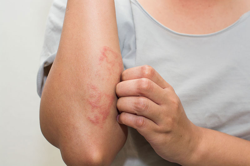 4 درمان اگزما با پماد میکونازول سه
