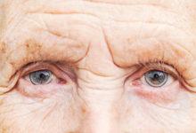 Photo of روش های درمان و پیشگیری از ابتلا به دژنراسیون ماکولا یا تباهی لکه زرد