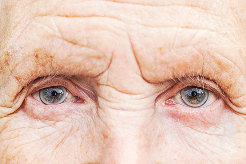 4 جلوگیری از ابتلا به دژنراسیون ماکولا