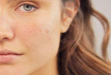 Photo of چگونه منافذ مسدود شده پوست صورت را باز کرده و پاکسازی کنیم؟